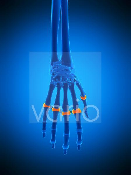Hand joint capsules, illustration