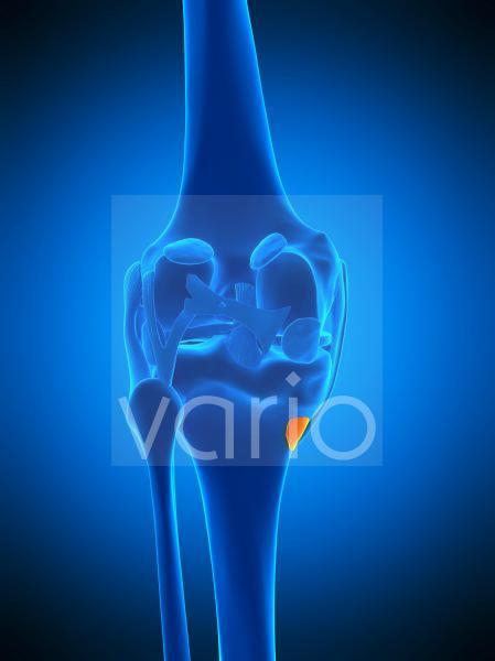 Knee bursa, illustration
